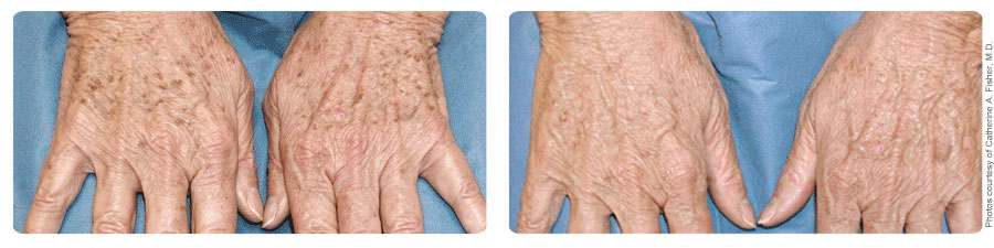 brown spots on hands before after